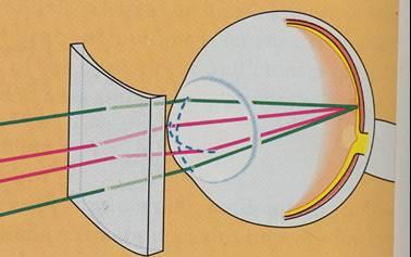 Korekce astigmatizmu cylindrickou čočkou