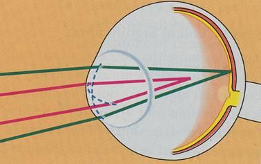Nekorigovaný astigmatizmus