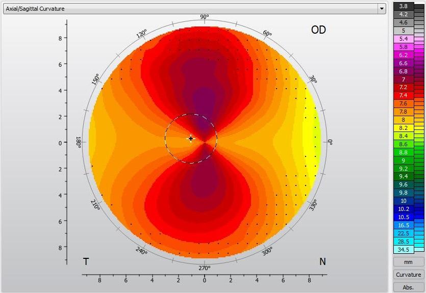 Topografie - vyšší astigmatizmus